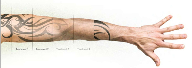 laser tattoo removal essex southend on sea